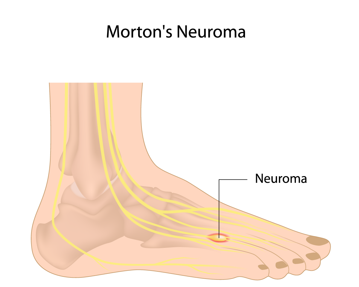 Morton 39 s neuroma g4 physiotherapy fitness for Douleur pied exterieur