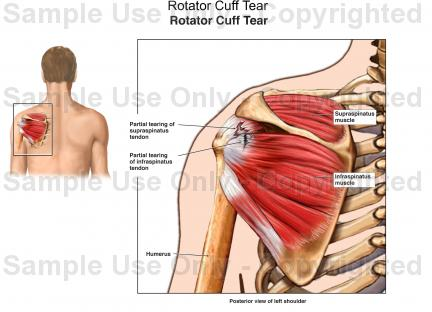 Rotator Cuff G4 Physiotherapy Fitness