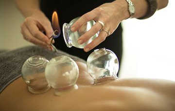 gift_vouchers-cupping